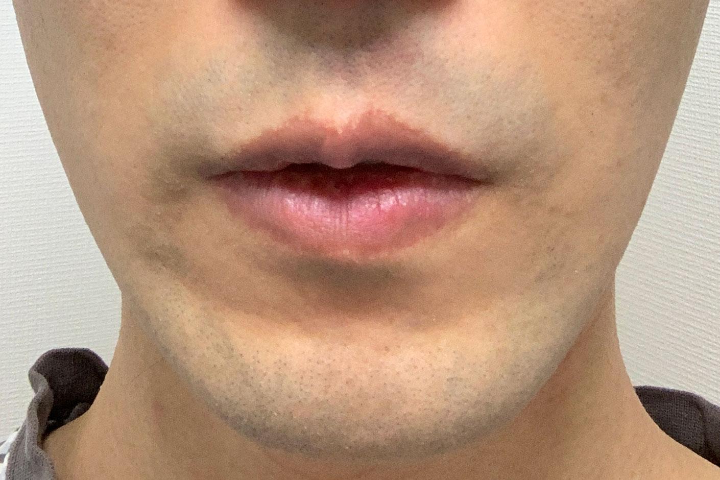 フィリップス 髭剃り シェーバー 深剃り 試し