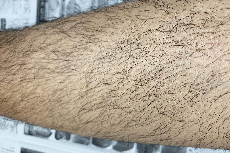 濃いスネ毛 処理 すきカミソリ ヘアトリマー